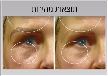 לפני ואחרי טיפול להעלמת קמטים בפנים בעזרת מכשיר פייסטייט לטיפול בגלי רדיו