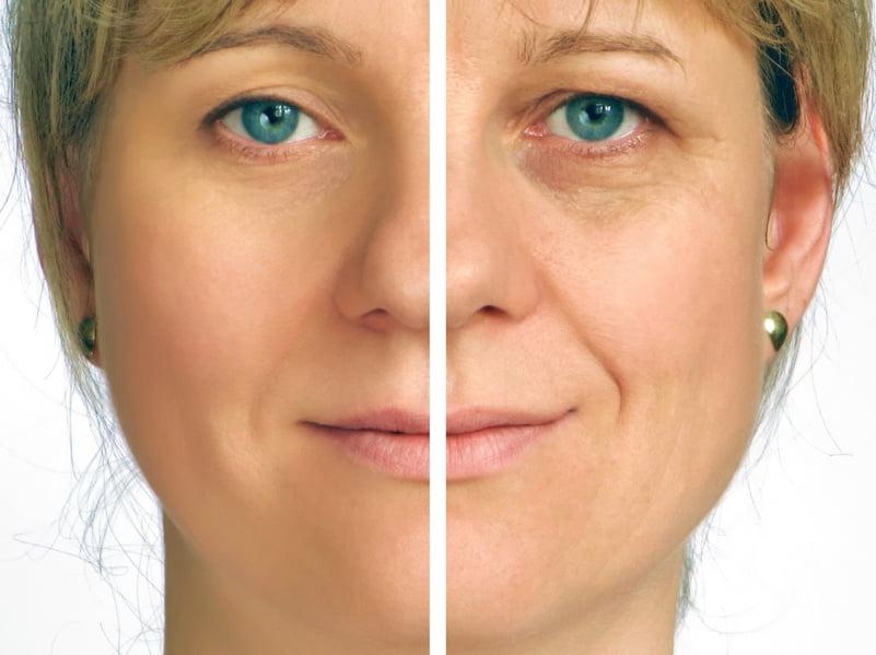 לפני ואחרי טיפול בסילקן פייסטייט מכשיר בגלי רדיו להעלמת קמטים בעור הפנים